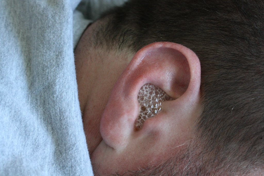 Hydrogen Peroxide Being Used in Ears -What You Need to Know