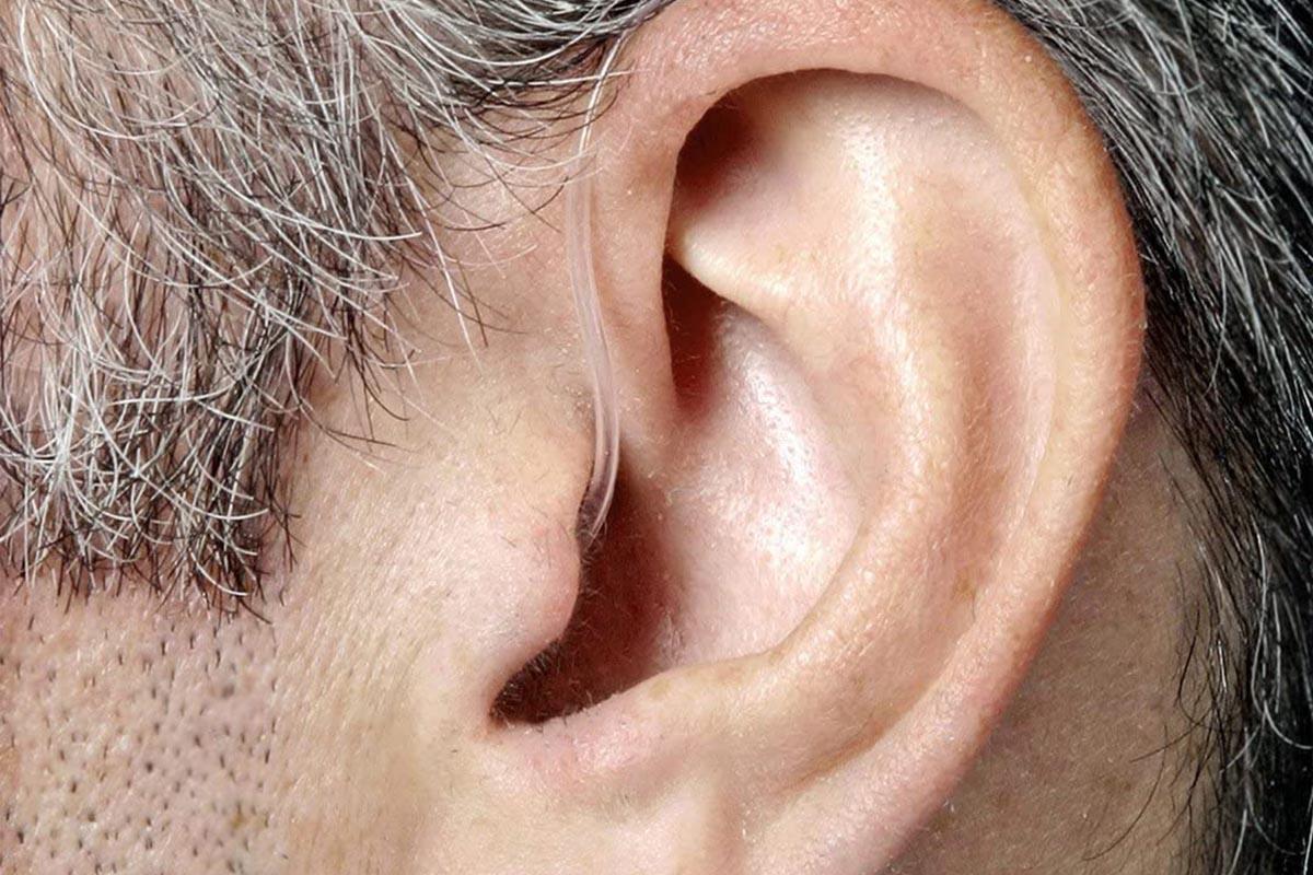 Analog vs Digital Hearing Aids