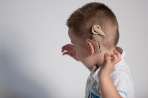 Know the Difference Between a Hearing Aid and a Cochlear Implant
